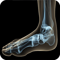 x-ray image of a foot