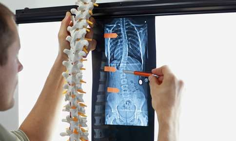 Scoliosis xray being examined